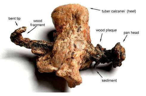 Heel Bone of Crucified Man